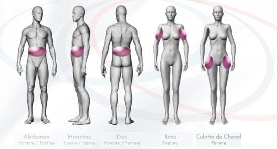 Médecine esthétique Indications Cryolipolyse | Médecine Esthétique Lyon