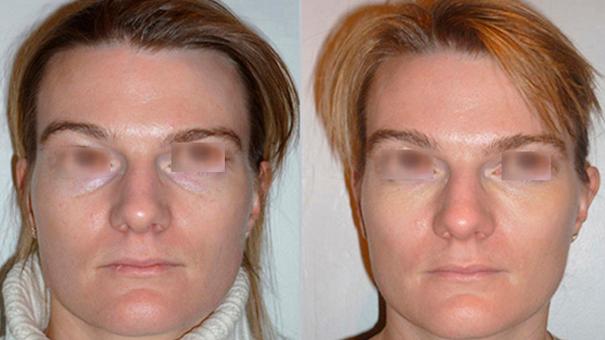 Médecine esthétique Acide Hyaluronique cernes résultats   Médecine Esthétique Lyon