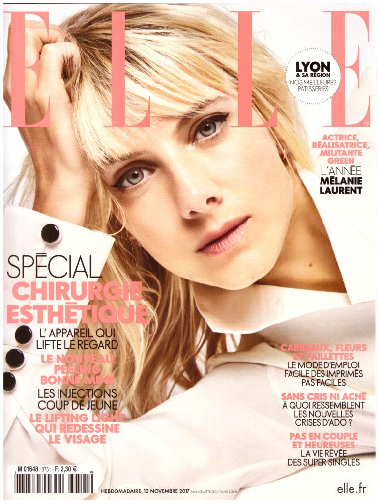Médecine esthétique La blépharoplastie sans chirurgie - Elle magazine | Médecine Esthétique Lyon