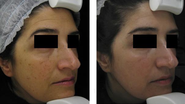 Résultats taitement laser pigmentaire