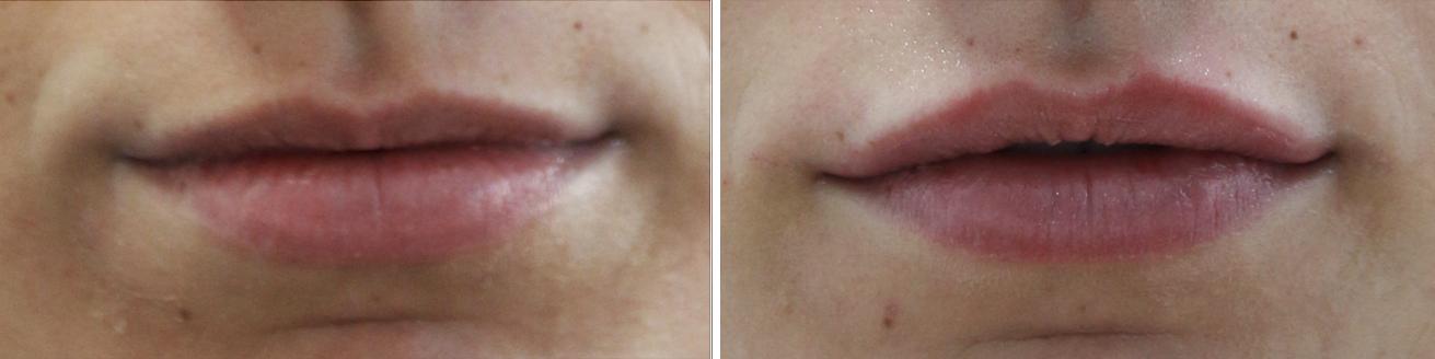Médecine esthétique Acide Hyaluronique Lèvres | Médecine Esthétique Lyon