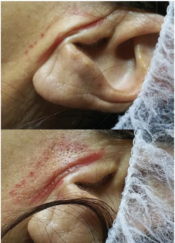 Médecine esthétique Plasmage : Cicatrices - résultats   Médecine Esthétique Lyon