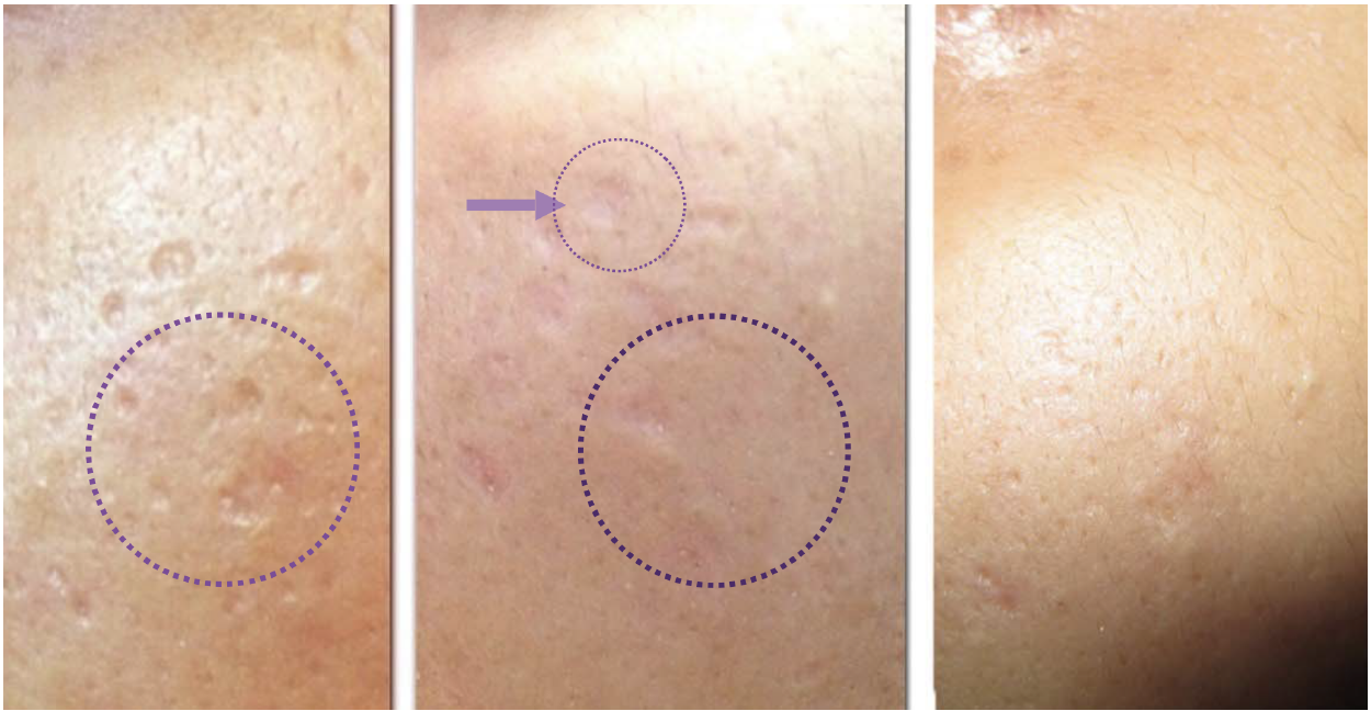 Médecine esthétique Plasmage : Cicatrices - résultats | Médecine Esthétique Lyon