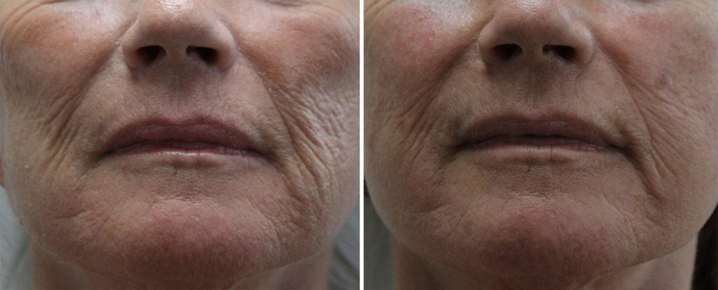 Traitement des joues : Acide hyaluronique volumateur + Skin Booster