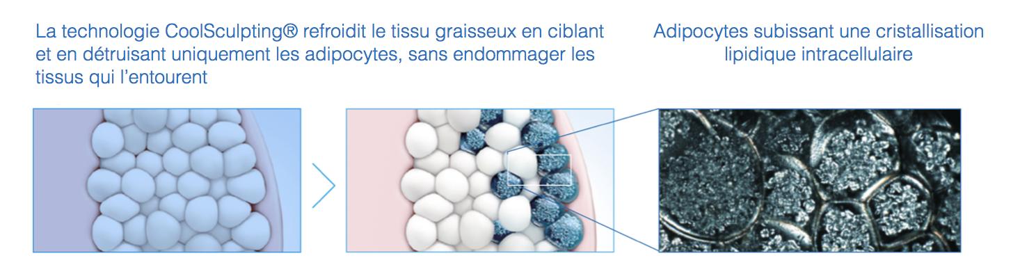 Médecine esthétique Cryolipolyse | Médecine Esthétique Lyon