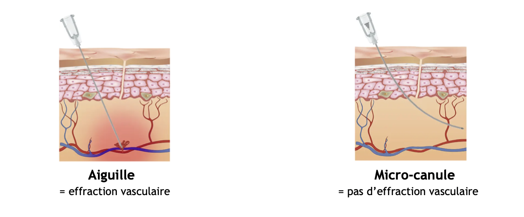 Médecine esthétique Qualité et sécurité des traitements injectables en médecine esthétique | Médecine Esthétique Lyon